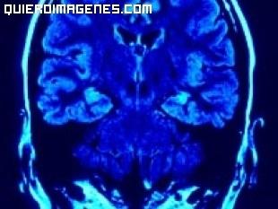 La parte creativa de nuestro cerebro
